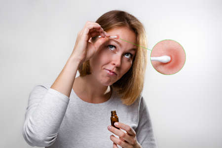 Cosmetology, dermatology and acne. A young blonde woman smears a pimple with a cotton swab with medicine. White background and enlarged image of pimple.