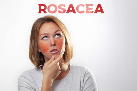 Medicine, cosmetology, rosacea. The woman is blonde with inflamed rosacea cheeks and blood vessels. Text
