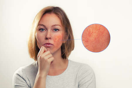 Medicine, cosmetology, rosacea. A blonde woman with rosacea-inflamed cheeks and blood vessels. Enlarged image of the focus of inflammation. Stock fotó