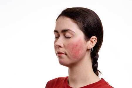 Portrait of a young Caucasian woman with closed eyes with rosacea on her cheeks. White background. Copy space. The concept of rosacea.