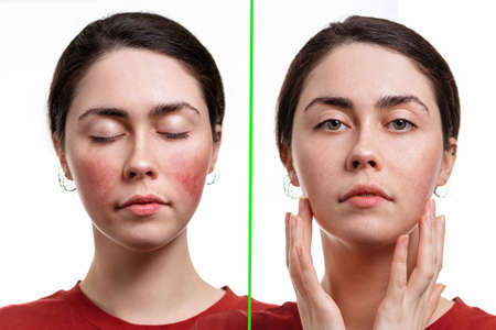 Two portraits of a young woman with rosacea on her cheeks and without it. The result before and after treatment. White background. Concept of rosacea. Stock fotó