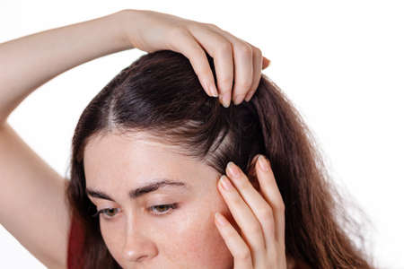 A woman examines the parting in her hair, pushing the strands apart with her hands. The view from the top. White background. the concept of dandruff and lice. Stock fotó