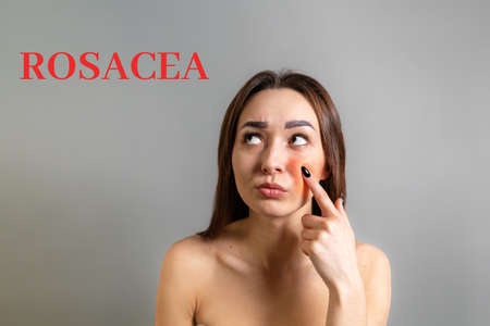 The concept of rosacea. A Caucasian brunette woman points a finger at a red cheek with inflammation. The inscription Rosacea. Copy space. Gray background.