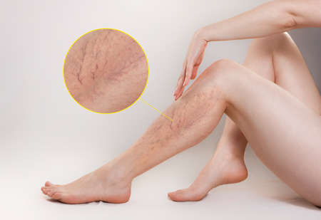 The concept of varicose disease and cosmetology. The woman sits gracefully setting aside her legs with vascular stars, and runs her palm over the skin. The enlarged image of blood vessels. Copy space.