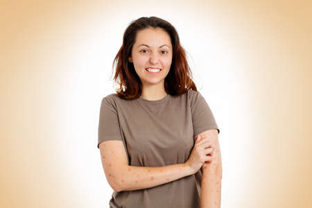 A young woman is nervously scratching her hands for rashes and redness. Beige background. The concept of scabies and allergies.