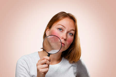 Portrait of a woman showing redness on her cheeks, through a magnifying glass. Pink background. The concept of rosacea.