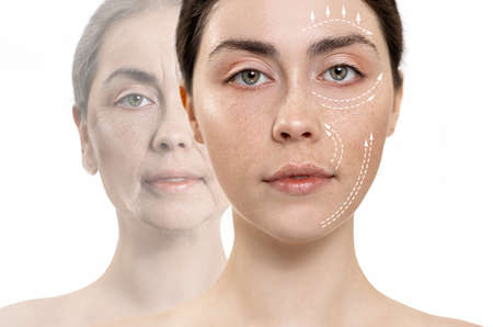 The result before and after plastic surgery. wo close up portraits of a caucasian woman. White background. Concept of professional skin care.