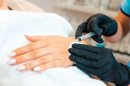 Cosmetologist makes injections of botulinum toxin on the client's hand against hyperhidrosis. Close up. Procedure in beauty salon.