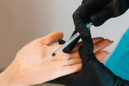 Procedure in beauty salon. Doctor makes injections of botulinum toxin on the client's female palm against hyperhidrosis. Close up. Concept of cosmetology. Stockfoto