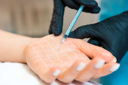 Protection from perspiring, hyperhidrosis. Doctor makes injections of botulinum toxin on the client's palm with white drawn grid. Close up. Stockfoto