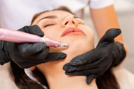Beautician in latex gloves does procedure of apparatus fractional mesotherapy of woman's face. Close up. Concept of salon cosmetology and professional skin care.