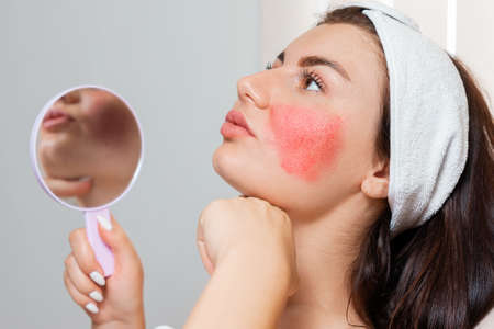 Couperose. A young beautiful woman holds a mirror showing rosacea on her cheeks. Hypersensitive skin and inflammation. Stockfoto