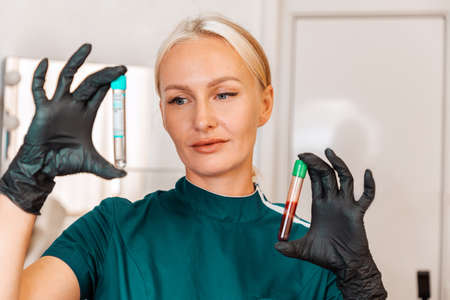 Plasmolifting. Beautician holding two test tubes with blood and without this. The concept of a health and beauty. 版權商用圖片