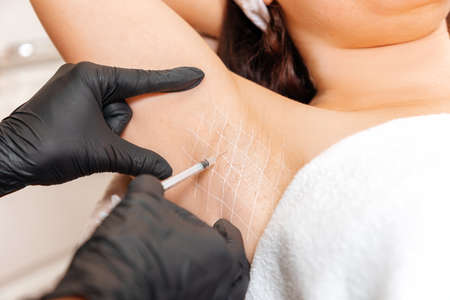 Cosmetologist in black latex gloves makes injection of botulinum toxin on the woman's axillary hollows against hyperhidrosis. Armpit with white drawn grid. Close up.