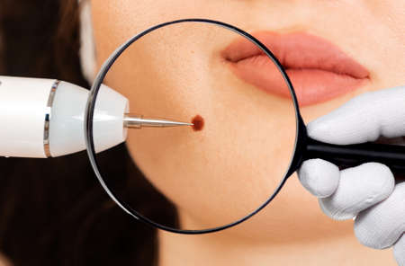 Microsurgery. Removal of birthmark from client's chin with laser device. Doctor's hand holding a magnifier glass for zoom. Close up. Concept of laser cosmelotogy and electrocoagulation.