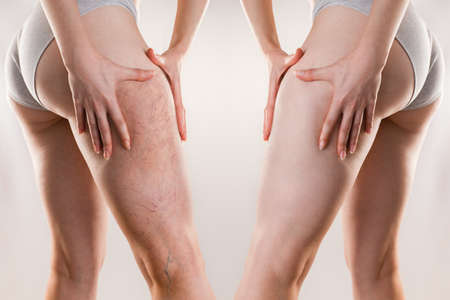 Medicine and varicose veins. A young woman of athletic build clutches her leg with a varicose mesh on her thigh. Before and after. 版權商用圖片