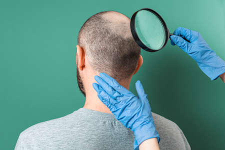 Trichologist examines the area of baldness on the client's head with a magnifying glass. Back view. Green background. The concept of alopecia and aesthetic medicine.