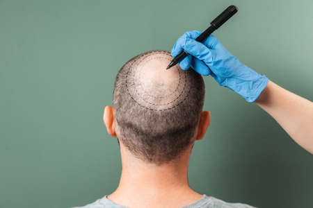 Trichologist outlines the area of baldness on the client's head with a marker. Rear view. Green background. The concept of alopecia and mesotherapy. Standard-Bild