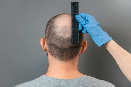 A man with baldness on his head is examined by a trichologist. The doctor's hand measures the bald spot with a ruler. Back view. The concept of alopecia and professional treatment.