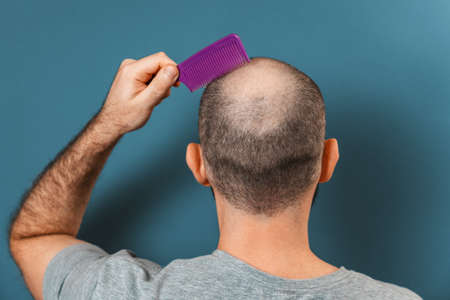A man combs his bald head with a comb. Blue background. Rear view. The concept of alopecia and baldness.