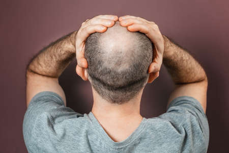 Self-doubt and inferiority complex. Baldy adult man grabs his head with his hands. Rear view. Brown background. The concept of alopecia and baldness.