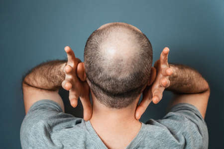 Baldy man suffering because of his appearance. Person grabs his head with his hands. Back view. Turquoise background. The concept of alopecia and baldness.