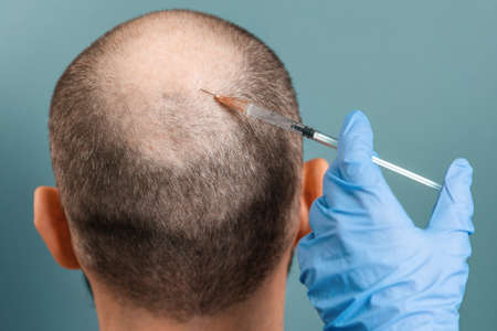Close up of male head with alopecia during a mesotherapy procedure with a trichologist. Back view. Turquoise background. The concept of baldness and professional treatment.
