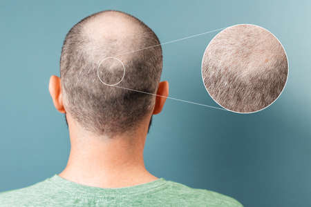 Back view of baldness man. Zoomed area of bald spot. Rear view. Blue background. The concept of alopecia and aesthetic medicine. Standard-Bild