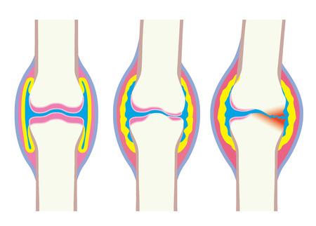 Joints, deformation, body, bone