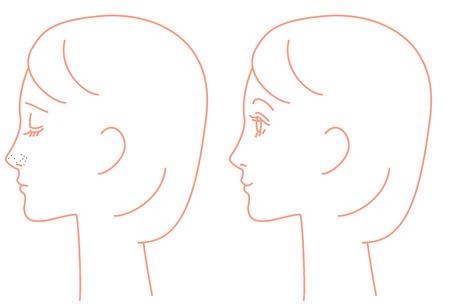 Nose, Keratin Plug, Pores, Sebum, Blackheads Stock Photo, Picture