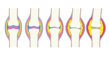 関節の変形