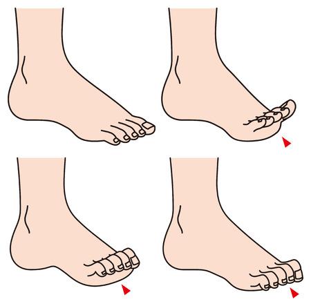 발가락의 문제 일러스트