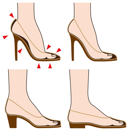 foot pain: Form and foot of shoes