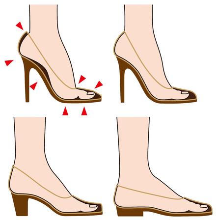 dolore ai piedi: Forma e piede di scarpe Vettoriali