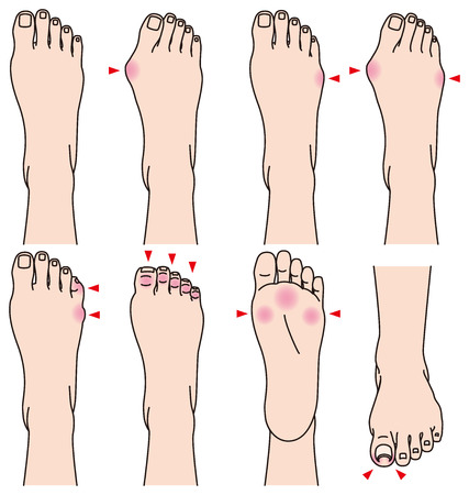 feet care: foot. Pain. Illustration
