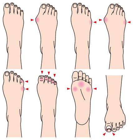 dolore ai piedi: piede. Dolore. Vettoriali