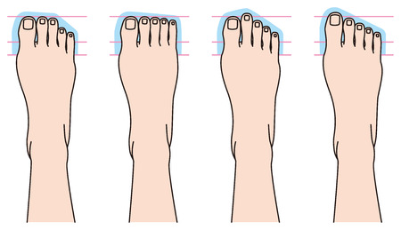 toenail: Form of toes