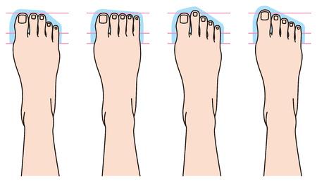 toenail: Form of toes