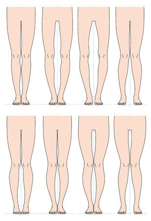 Shape of the legs