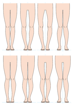 Shape of the legs