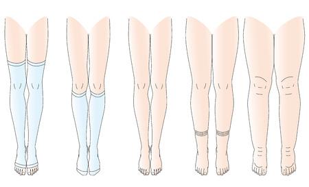 Beine gibt es keine Ödeme Schwellungen Beine Illustration