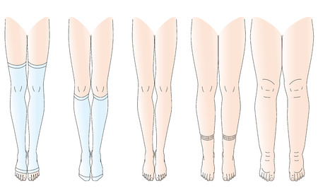 Legs there is edema no swelling legs 向量圖像