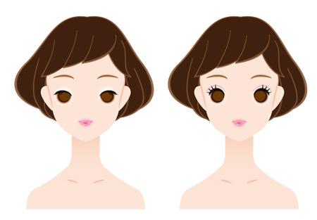 Single eyelid and double eyelid. Illustration
