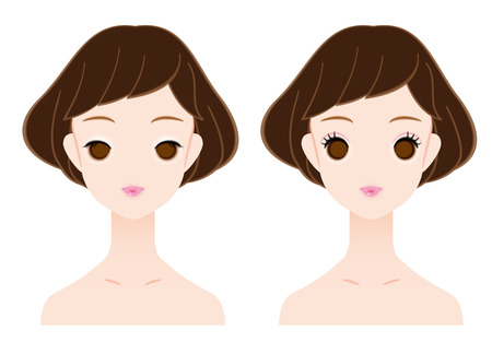 eyelids: Single eyelid and double eyelid. Illustration