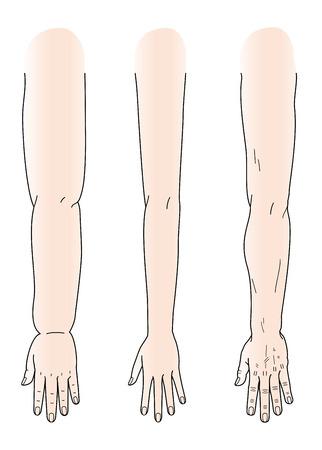 codo: Las manos y los brazos manos delgadas y manos de brazos robustos y brazos hinchados
