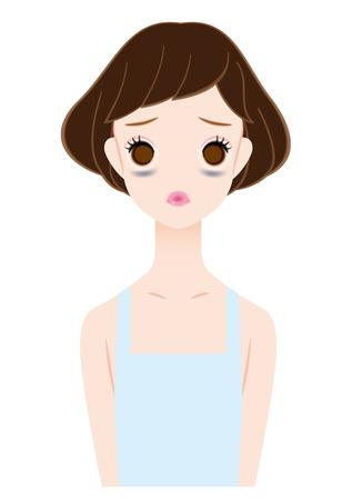 cansancio: Las mujeres que sufren de los círculos oscuros bajo los ojos Vectores