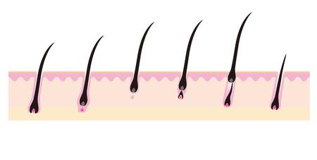 Boceto de imagen en el ciclo de crecimiento del cabello Foto de archivo - 40609591
