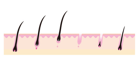 Image sketch in the hair growth cycle