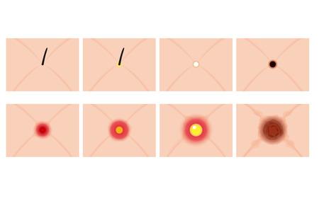 pus: Acne schematic Illustration