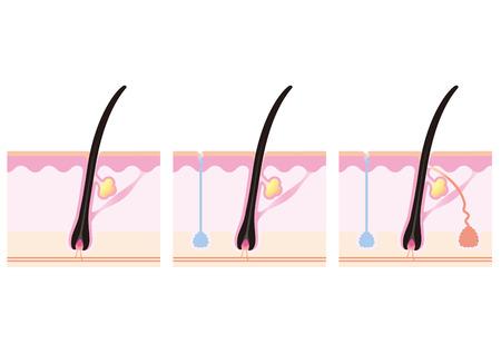 Pores schematic